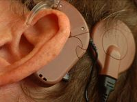 Illustrationsbild: Ohr mit Cochlea Implantat